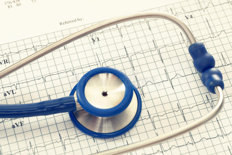 Stethoscope with ekg cardiograms chart. Filtered image: cross processed vintage effect. stock photography