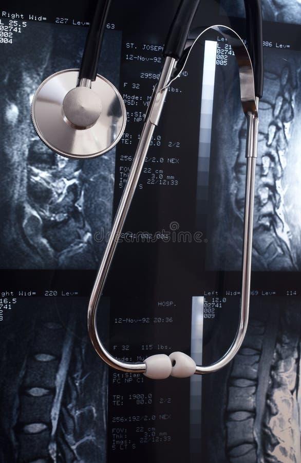 Stethoscope On MRI royalty free stock image