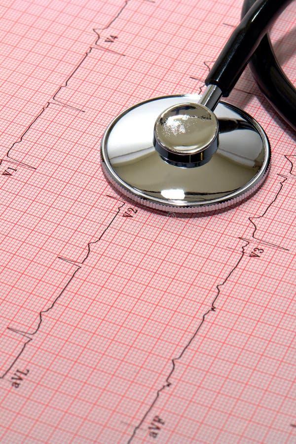 Stethoskop über EKG Diagramm stockfoto
