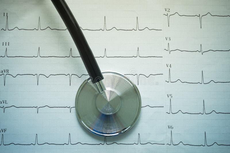 Stetoscopio e cardiografo fotografia stock libera da diritti