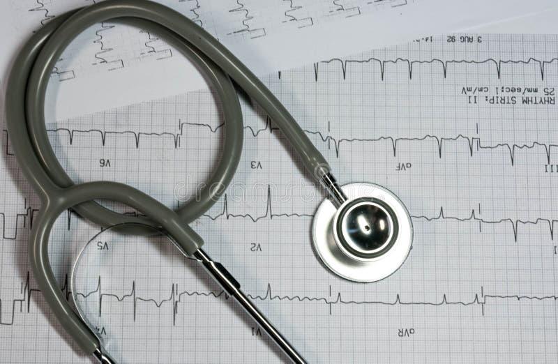 Stetoscopio sull'elettrocardiogramma immagine stock libera da diritti