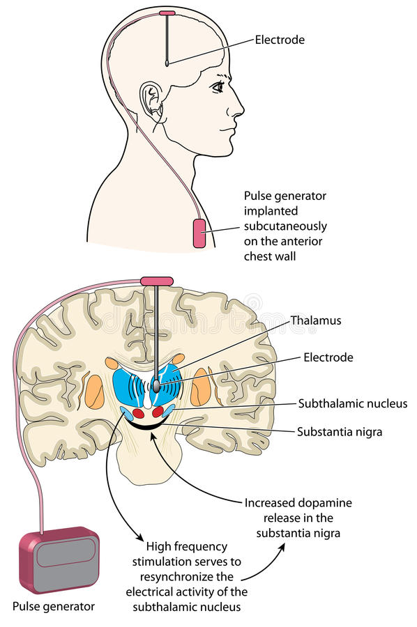 Stimulation profonde de cerveau illustration libre de droits
