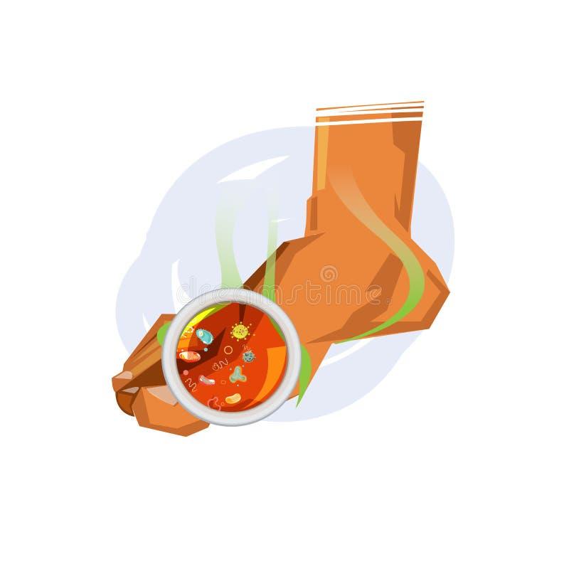 Stinkande fot med bakterier smutsig fot Smutsigt fotfaktumbegrepp - stock illustrationer
