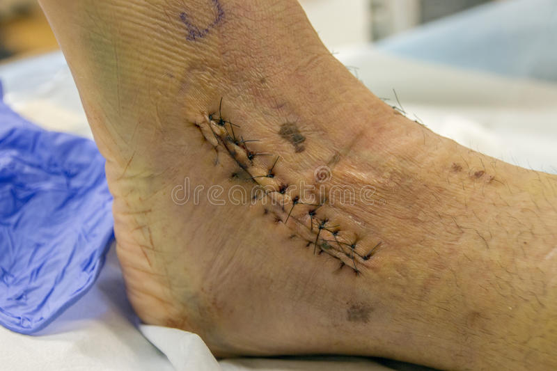 Stitches on human ankle and foot. royalty free stock image