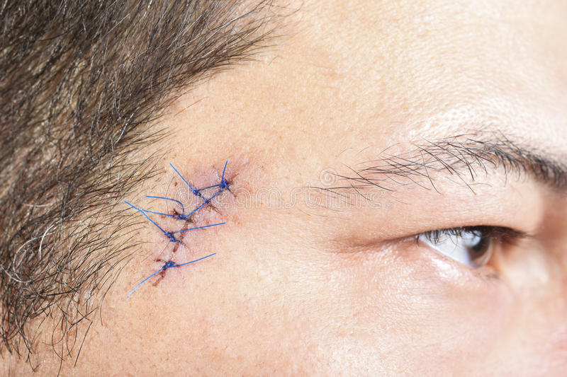 Stitches on man face. Close-up stitched wounds after skin biopsy on the man's face stock photos
