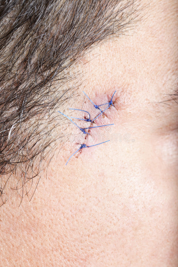 Stitches on man face. Close-up stitched wounds after skin biopsy on the man's face royalty free stock photo