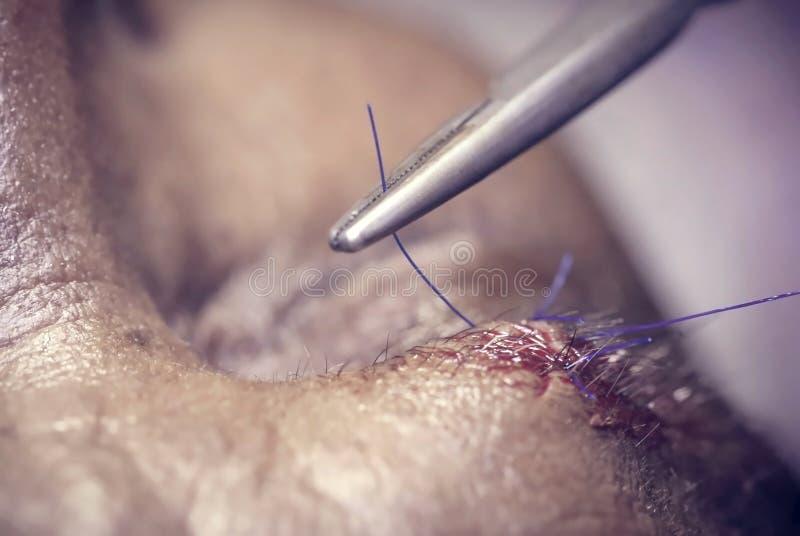 Stitching wound stock photo