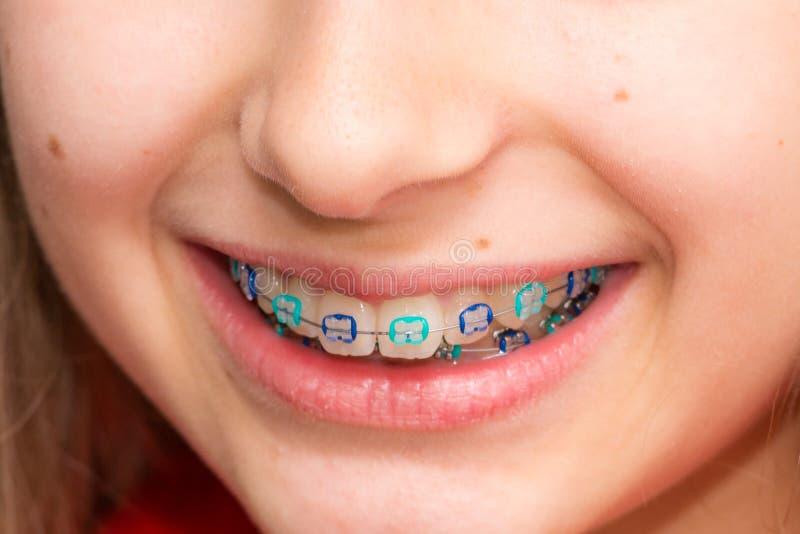 Stock photo of the metal braces stock image