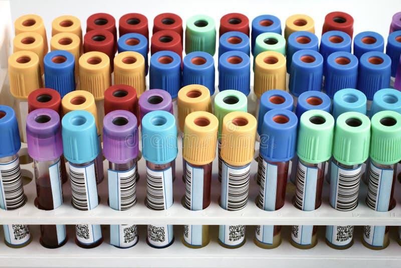 Stojak krew tubki przylepiać etykietkę w banka krwi lab zdjęcia royalty free