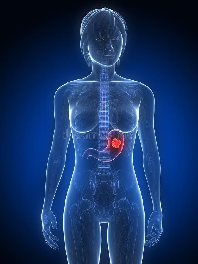 Download Stomach cancer stock illustration. Image of disease, gallbladder - 14526925