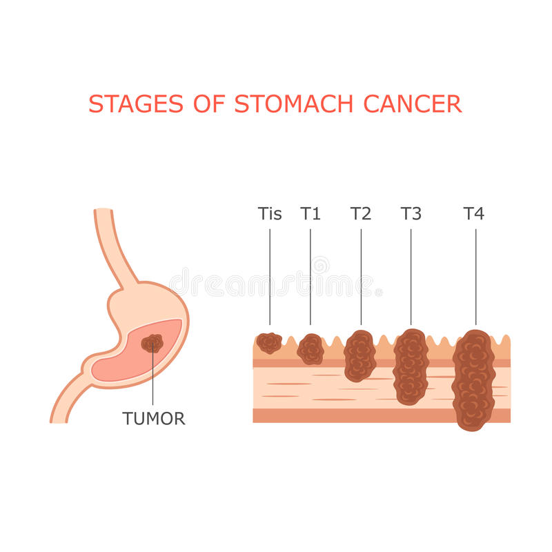 Stomach cancer stages, stock vector. Illustration of health - 55777187
