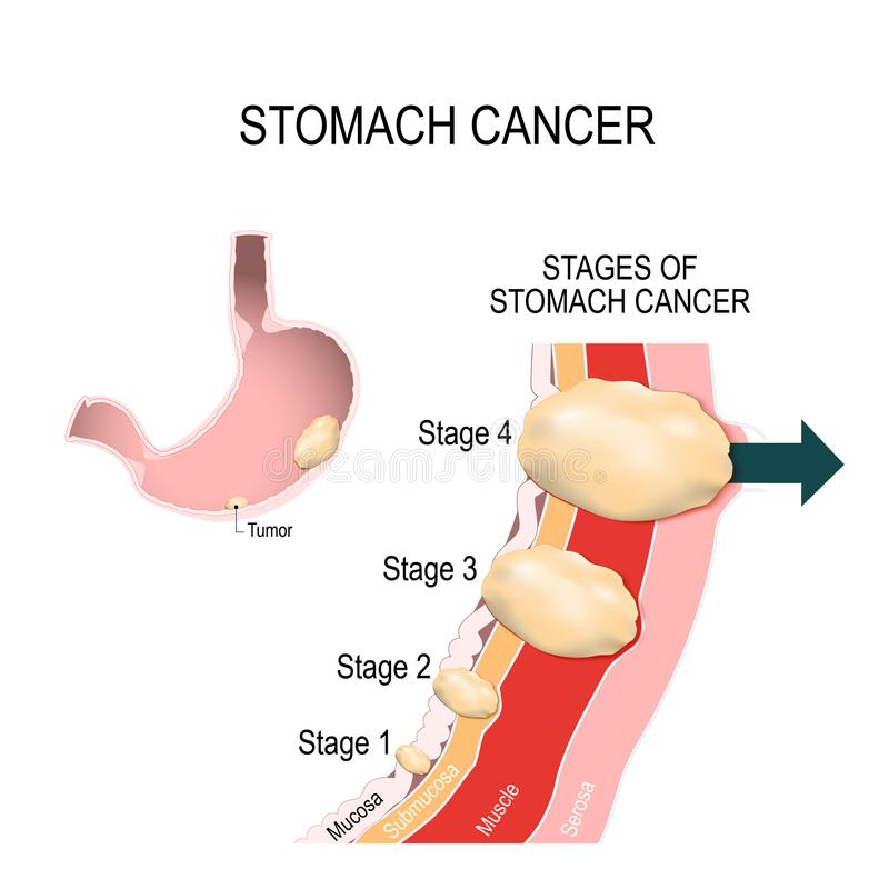 Stomach cancer. Vector illustration for medical use. The clinical stages of stomach cancer. Classification of Malignant Tumours. Vector illustration for medical stock illustration