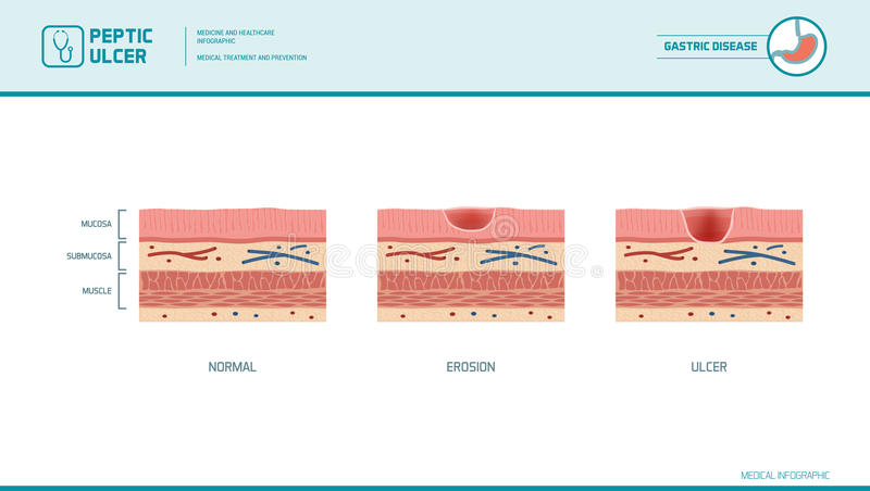 Stomach erosion and peptic ulcer. Stages infographic: stomach lining and mucosa cross section diagram, medical illustration vector illustration