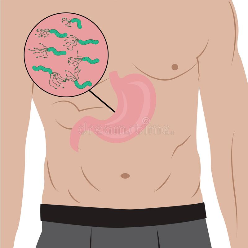 A Stomach full of Helicobacter pylori in the people`s body. gastritis cause. Vector illustration in cartoon style royalty free illustration