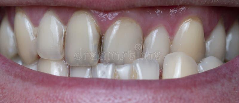 Stomatologiczna plakieta na mężczyzn zębach powodować kawowy pozostałościowym obraz royalty free