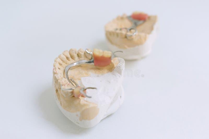 Stomatologiczne protetyki, wszczepy Gipsu model na stole przy dentystą obraz royalty free