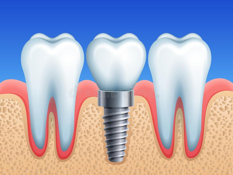 stomatologicznego elementów wszczepu odosobniony widok biel ilustracji