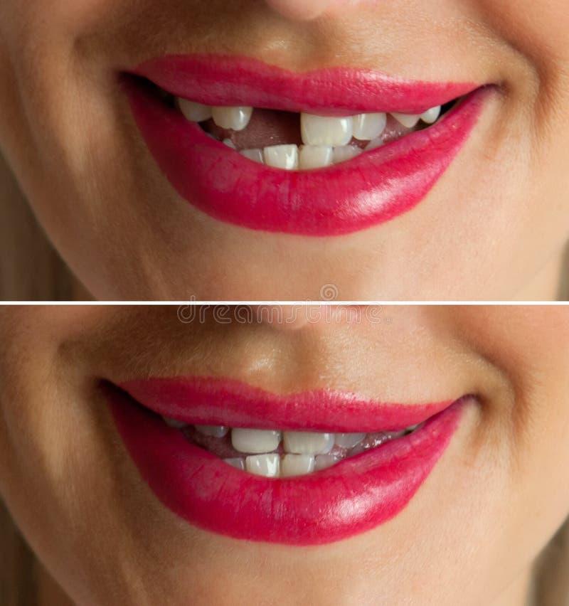 stomatologicznego elementów wszczepu odosobniony widok biel obrazy stock