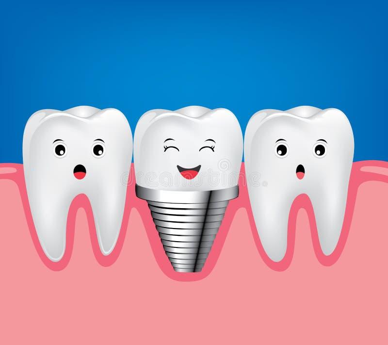 Stomatologicznego wszczepu i normalna zębu piękny jaskrawy ilustracji