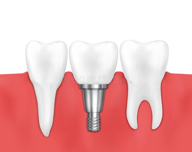 Stomatologicznego wszczepu i normalna zębu wektoru ilustracja royalty ilustracja