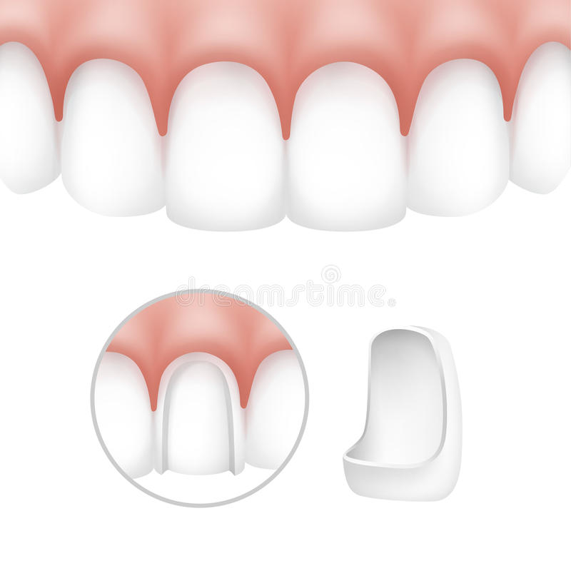 Stomatologiczni forniry na ludzkich zębach ilustracja wektor