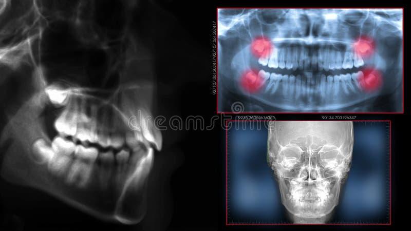 Stomatologiczni obrazu cyfrowego promieniowania rentgenowskiego zęby zdjęcie royalty free