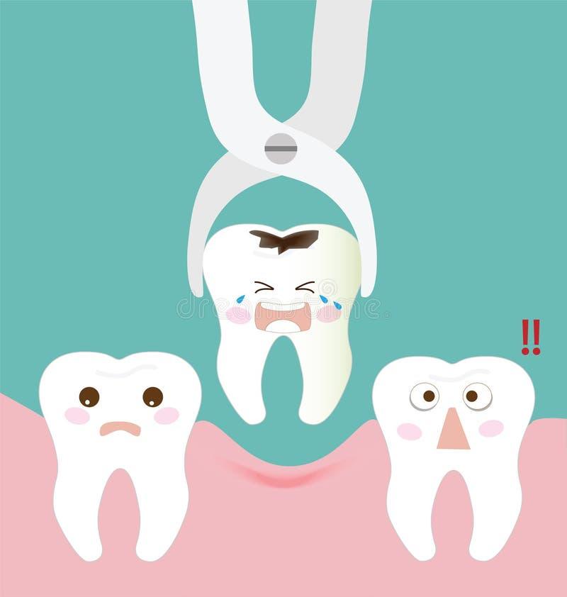 Stomatologiczny ekstrakcyjny forceps i ząb royalty ilustracja
