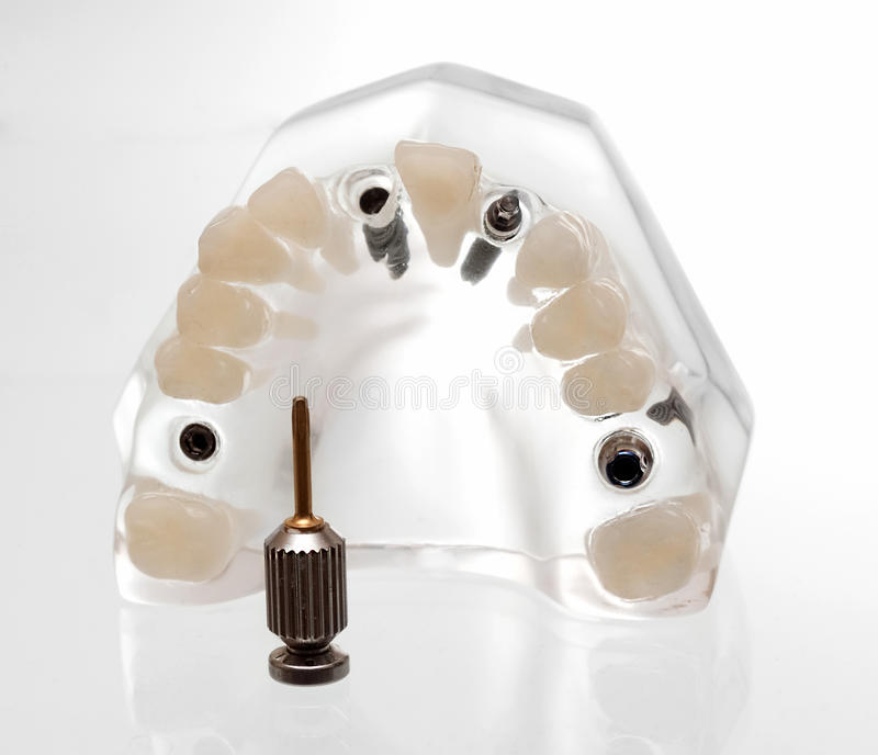 stomatologiczny implants3 obrazy royalty free
