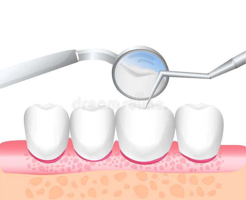 Stomatologiczny instrument E Biel emaliowi i zdrowi ludzcy zęby dentyści Kierunek dentystyka Wektorowa bolączka royalty ilustracja
