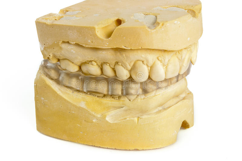 Stomatologiczny kąsek z kreda modelem obraz royalty free