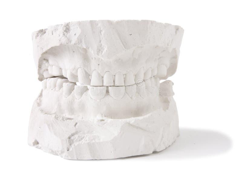 stomatologiczny model obraz stock