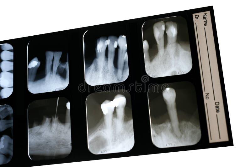 stomatologiczny promień x obrazy stock