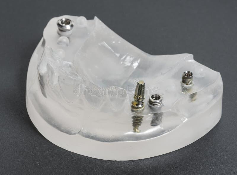 stomatologiczny wszczepów medycyny stomatology zdjęcia stock