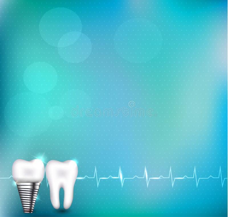 Stomatologiczny wszczep i normalna ząb royalty ilustracja