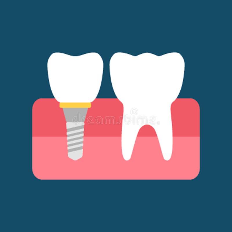Stomatologiczny wszczep i normalny ząb P?aska wektorowa ilustracja odizolowywaj?ca ilustracji