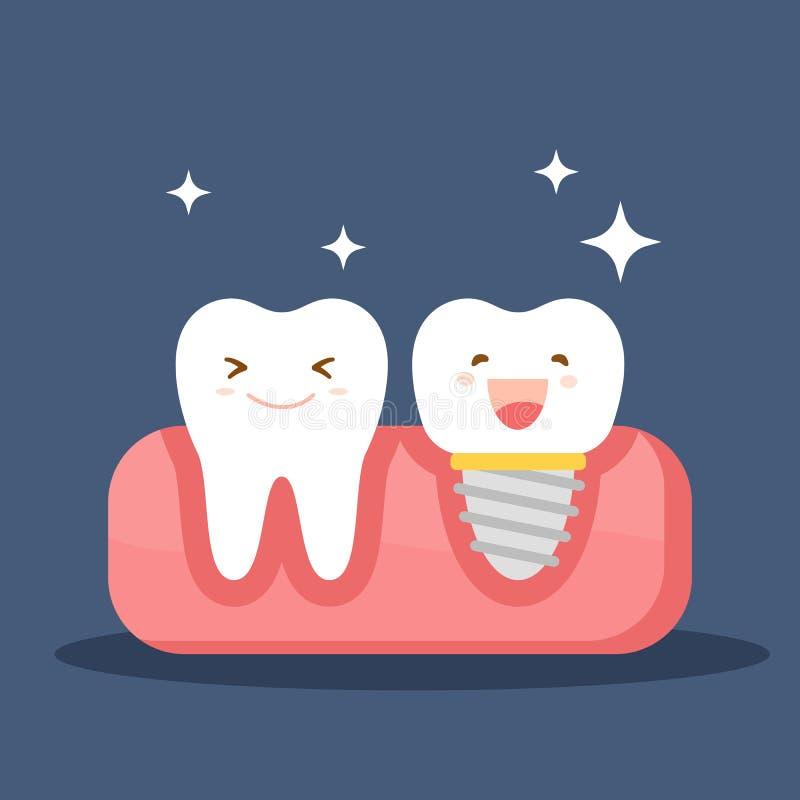 Stomatologiczny wszczep i normalny ząb Przywrócenie w oralnym zagłębieniu Płaska ilustracja na temacie dentystyka wektor ilustracji