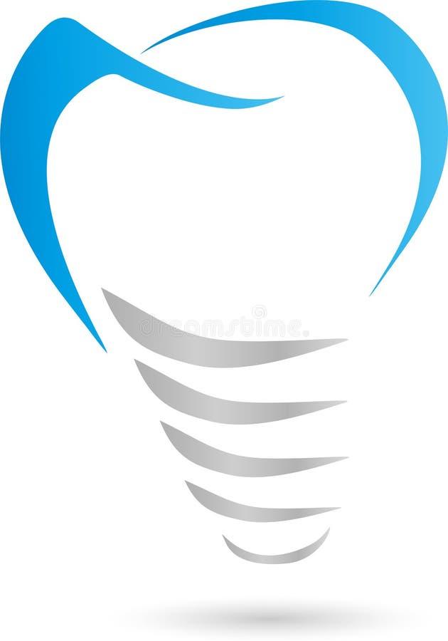 Stomatologiczny wszczep, wszczep, logo royalty ilustracja