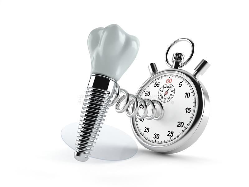 Stomatologiczny wszczep z stopwatch ilustracji