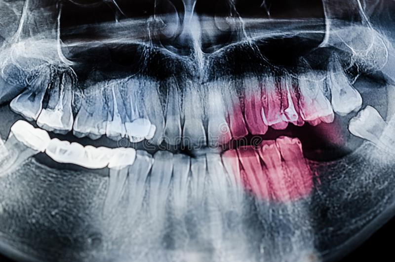 Stomatologiczny Xray promieniowanie rentgenowskie obrazy royalty free