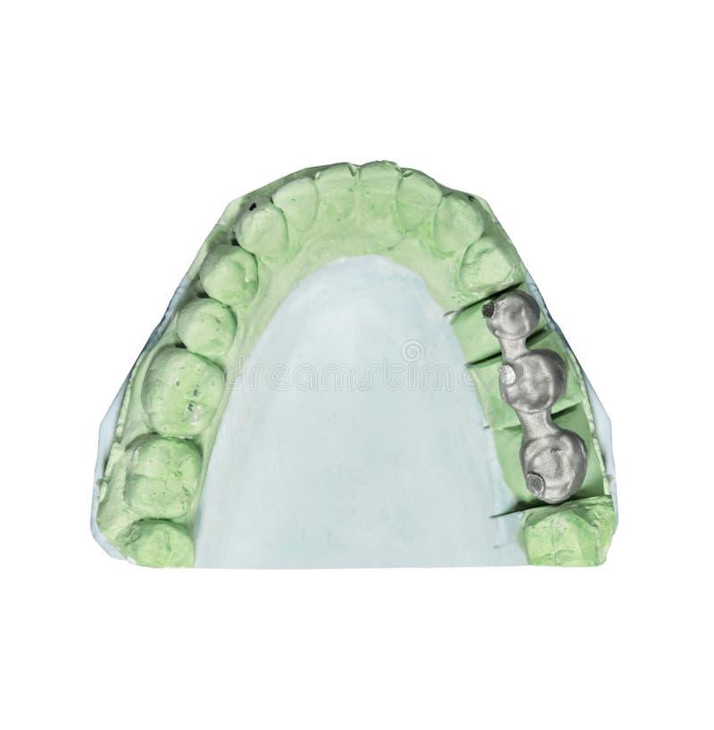 Stomatologiczny zębu wszczepu tynku wzór z metalu mostem odizolowywającym fotografia stock