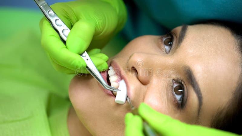 Stomatologist bierze za bawełnianej rolce od żeńskiego cierpliwego usta, zakończenie w górę fotografia royalty free