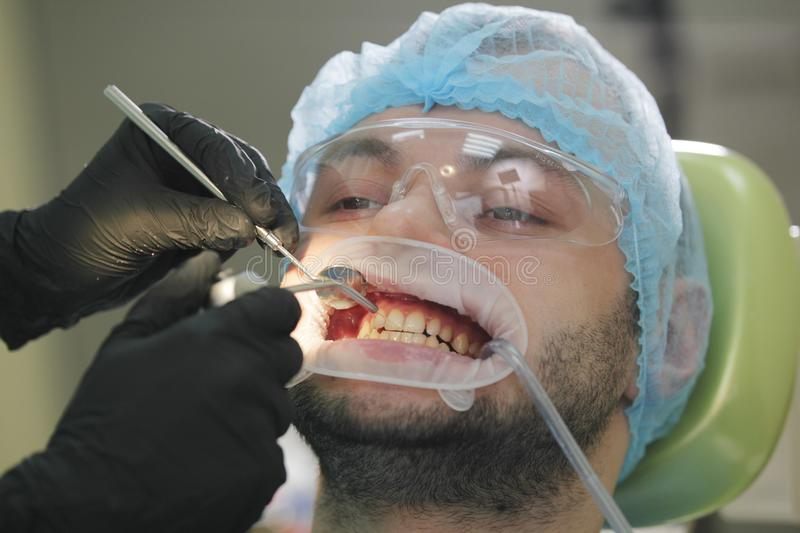 Stomatology healthcare - male patient at dentist`s chair stock photos