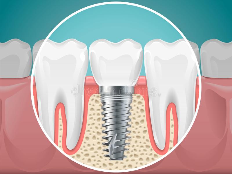 Stomatology illustrations. Dental implants and healthy teeth. Vector health tooth and implant stomatology, dentistry installation and fixture vector illustration