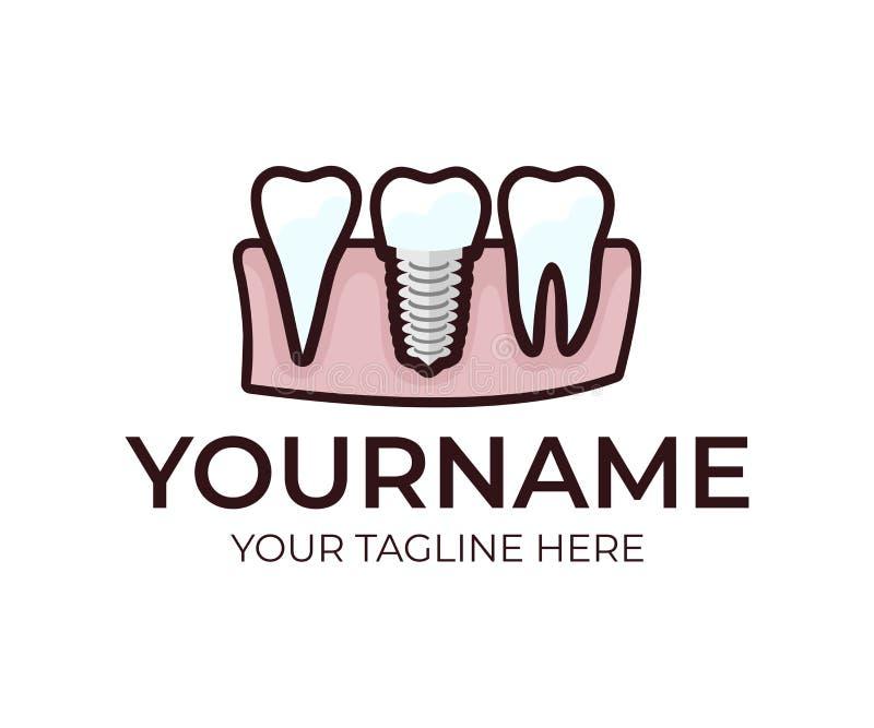 Stomatology, implante dental, dentadura e dentes, molde do logotipo Dente médico, dental, projeto do vetor dentistry ilustração do vetor