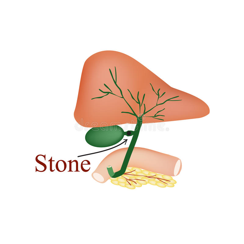 Stone bile duct. Gallbladder, duodenum, pancreas, bile ducts. Vector illustration on isolated background. Stone bile duct. Gallbladder, duodenum, pancreas, bile royalty free illustration