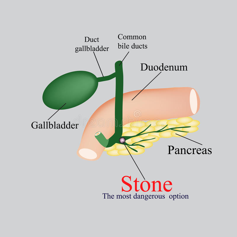 Stone pancreatic bile duct. The gall bladder, duodenum, bile ducts. Vector illustration on a gray background.  vector illustration