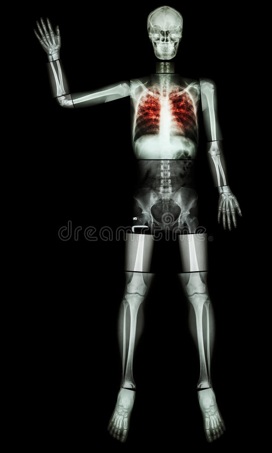 Stop TB(Tuberculosis) (Human bone raise hand) (Whole body :head skull neck spine shoulder arm elbow forearm wrist hand finger tho. Rax chest heart rib back royalty free stock images