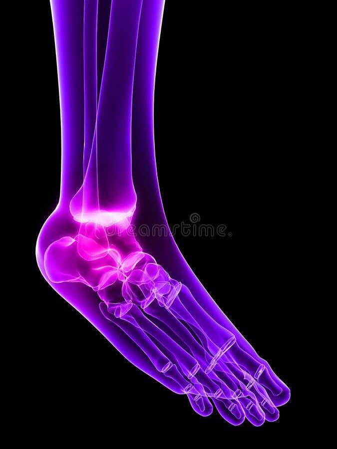 stopa inflamated ilustracji