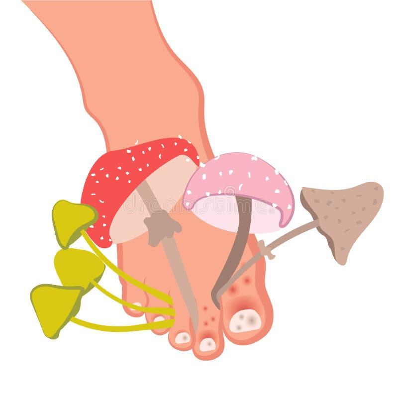 Stopa z dorośnięciem ono rozrasta się od palca Fungal lesions stopa, gwoździe i skóra, Atlety stopa, candidiasis, omnios der ilustracji