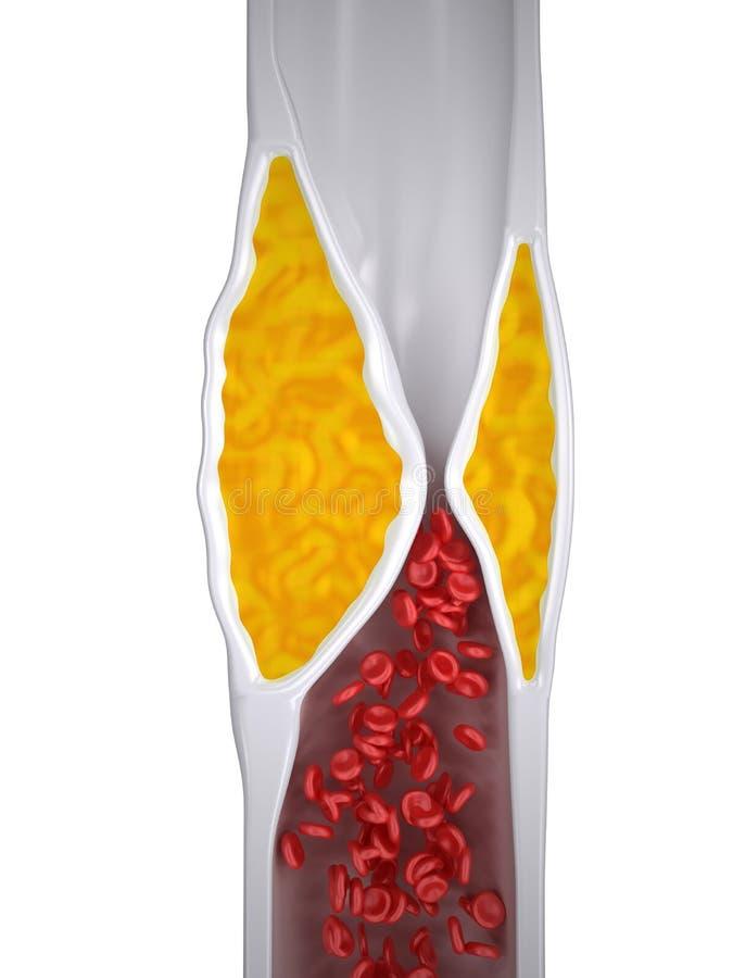 Stoppad till artär - Atherosclerosis/arterioskleros - kolesterolplatta - bästa sikt royaltyfri illustrationer